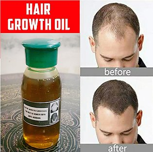 (200% Result) - Hair King Oil - Hair Growing Herbal Oil - GUARANTEED RESULT
