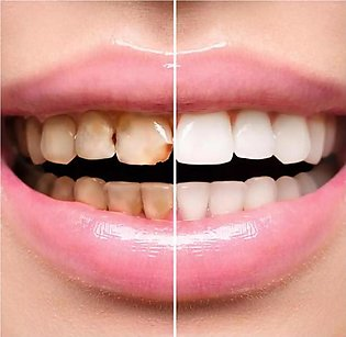 Teeth Permanent Whitening Pen (Cleaning)