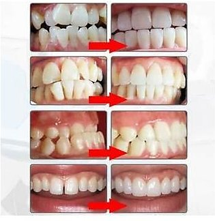 Dental Tooth Orthodontic Appliance Trainer Alignment Braces for Teeth Straighte…
