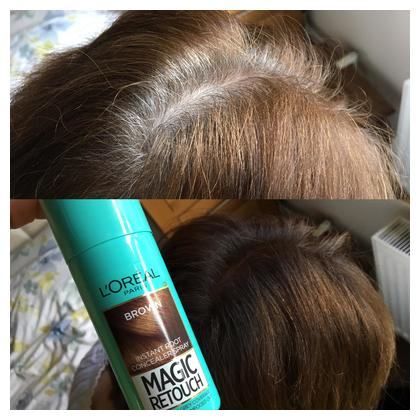 Loreal Magic Retouch Root Touch Up Hair Color Spray - Brown 75ml